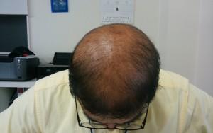 育毛シャンプー体験記を断念し頭を下げるハゲ部部長(仮)