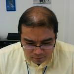 続『ハゲ部部長(仮)がネットで育毛シャンプー買ったってよ』