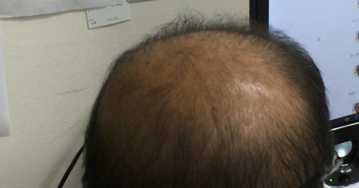 頭頂部から薄毛が進行しているハゲ部部長(仮)