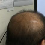 薄毛対策に効果を実感|読者から届いた一通のメール