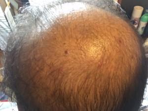 薬用育毛剤オメガプロ使用開始から30日 塗布後
