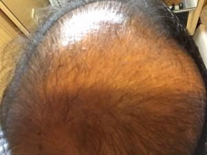 薬用育毛剤オメガプロ使用開始から10日塗布前