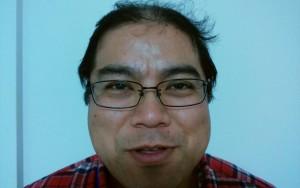 薬用育毛剤オメガプロ使用後のハゲ部部長(仮)
