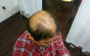 薬用育毛剤オメガプロ使用前のハゲ部部長(仮)の頭頂部