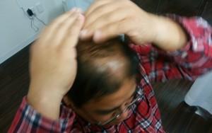 薬用育毛剤オメガプロを頭頂部を中心に頭皮を軽く叩きながら浸透させてくハゲ部部長(仮)