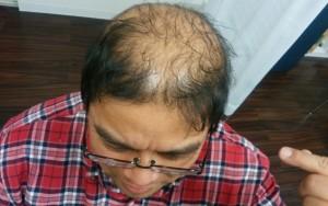 薬用育毛剤オメガプロを頭頂部を中心に頭皮に塗りこみ浸透させるハゲ部部長(仮)