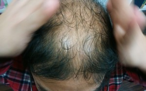 側頭部から頭頂部へ髪を引き上げる頭皮マッサージをするハゲ部部長(仮)