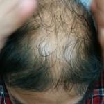 『頭皮マッサージ』実際やってますか?|ハゲ部部長(仮)