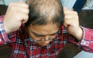 側頭部に拳を当て頭皮マッサージをするハゲ部部長(仮)
