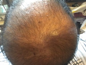 薬用育毛剤オメガプロ使用直前のハゲ部部長(仮)