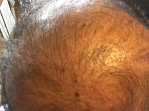 薬用育毛剤オメガプロ使用開始から10日 塗布後