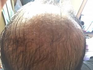 薬用育毛剤オメガプロ使用開始から60日目塗布後