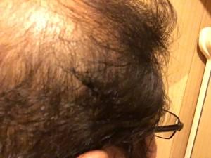 薬用育毛剤オメガプロ使用開始から60日側頭部