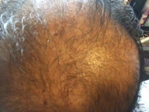 薬用育毛剤オメガプロ使用開始から40日目塗布前